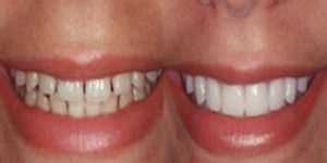 A before and after picture of someone's teeth