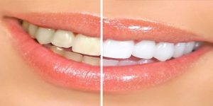 A picture of someone's smile before and after cosmetic dentisty
