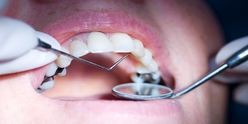 Dentist performing dental restorations